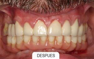 Implantes rehabilitaciones compleja despues