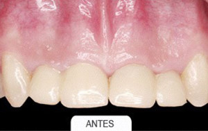Estetica dental antes