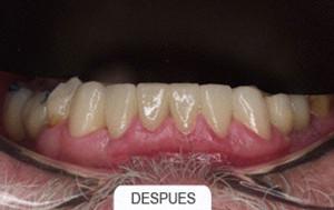 Estetica dental despues