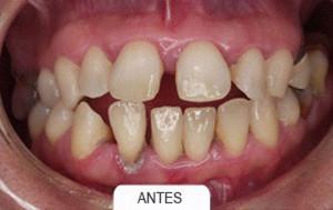 Ortodoncia antes