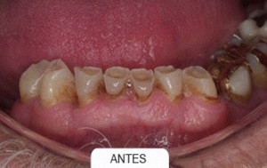 Estetica dental antes