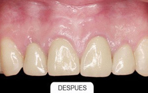 Estetica dental despues
