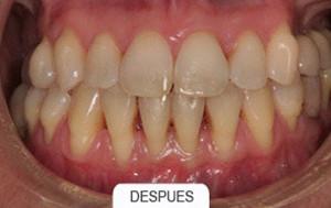 Ortodoncia despues