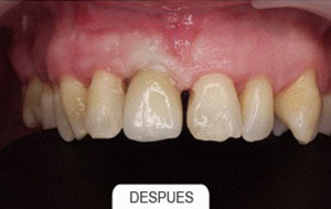Periodoncia despues